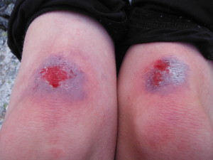 Knee damage immediately after