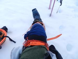 Splinted leg